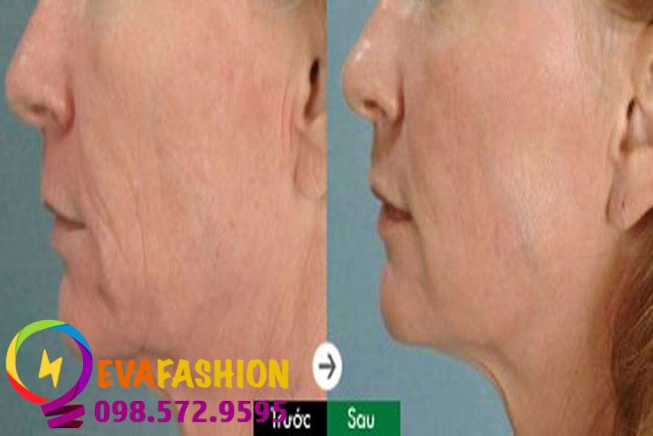Hình ảnh căng chỉ collagen