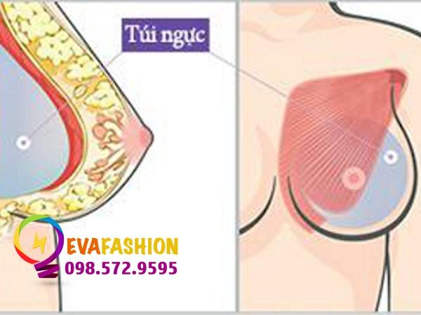 Giá nâng ngực phụ thuộc vào loại túi ngực