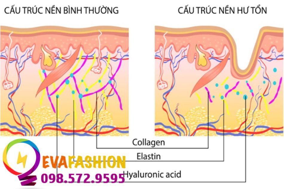 Sự thiếu hụt lượng lớn collagen khiến làn da mất đi cấu trúc chống đỡ và tạo ra các nếp nhăn