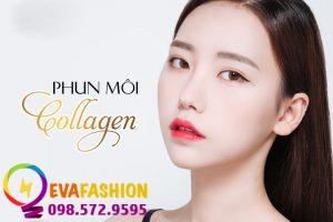 Phun môi Collagen - Phương pháp làm đẹp ưa cuộng của các chị em
