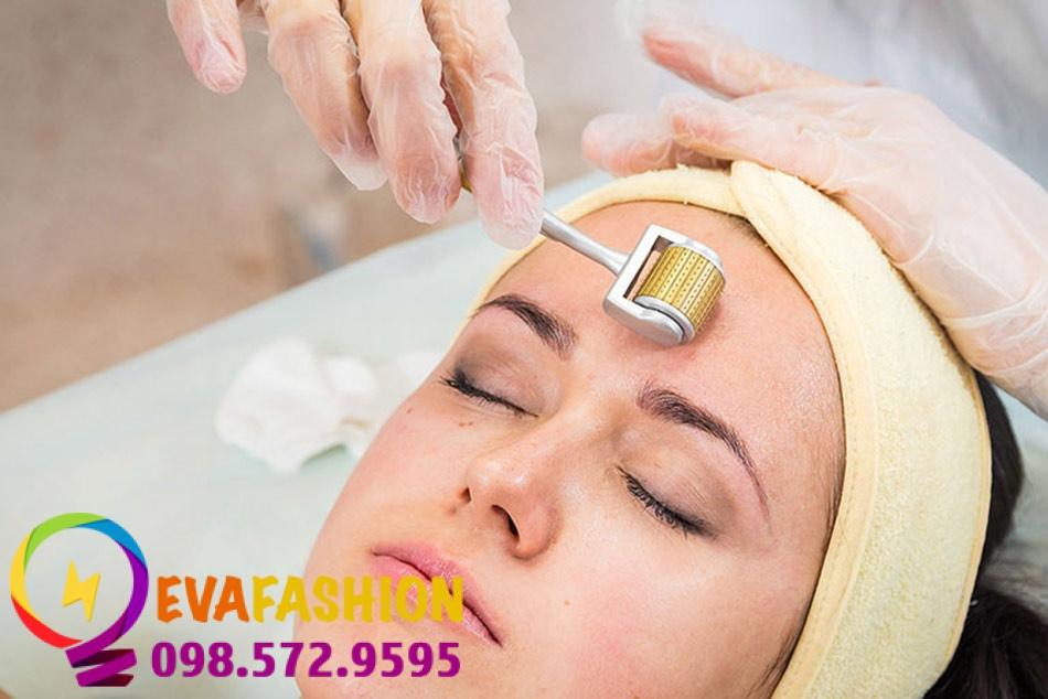 Phương pháp này cách sử dụng các đầu kim nhỏ tác động lên vùng da sẹo