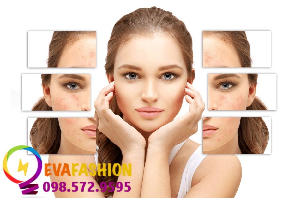 Sẹo rỗ (sẹo lõm) là di chứng của các tổn thương nghiêm trọng trên da