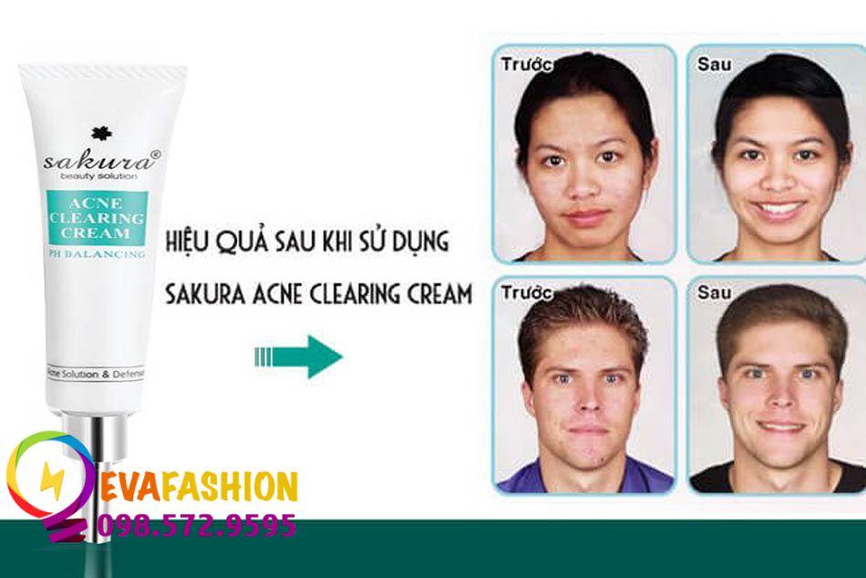 Hiệu quả sau khi sử dụng kem trị mụn Sakura Acne Clearing Cream