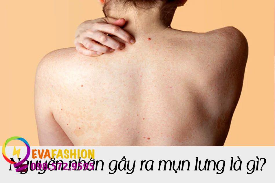 Nguyên nhân gây ra mụn lưng là gì?