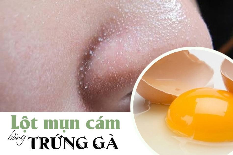 Tại tạo trứng gà có thể lột được mụn cám?
